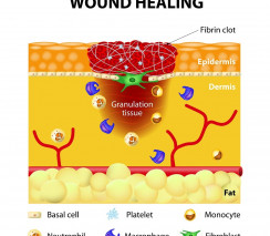 Wound Management (CPD)